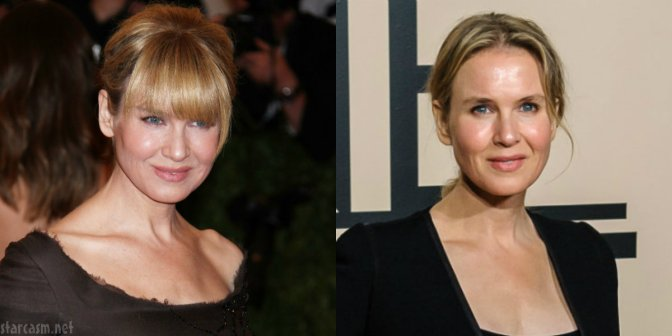 Star Watch: Renee Zellweger