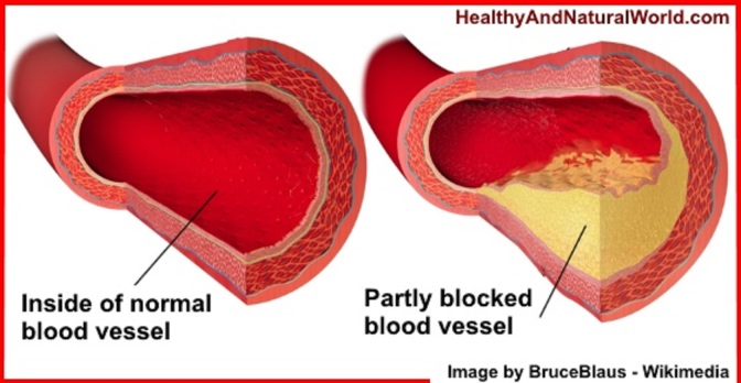 Consumer Info: Clearing Clogged Arteries Naturally through Food