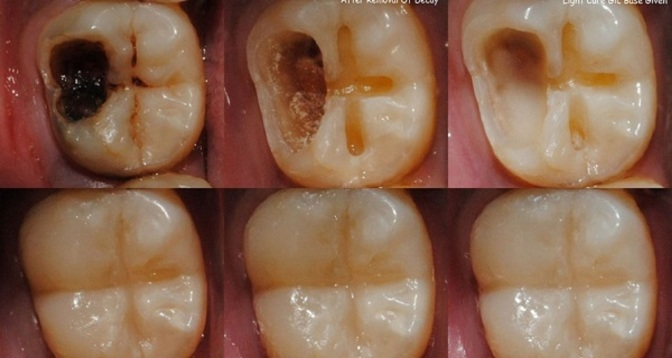 Consumer Info: 5 Steps to Reverse Cavities and Heal Tooth Decay