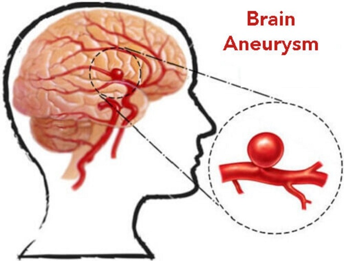 Consumer Info: All About Brain Aneurysm